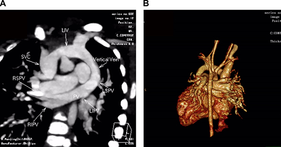 CT angiography in a 5-month-old girl with supracardiac total anomalous pulmonary venous connection (TAPVC) and unrestrictive ASD.