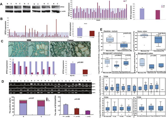 BTG3 expression in colorectal cancer.