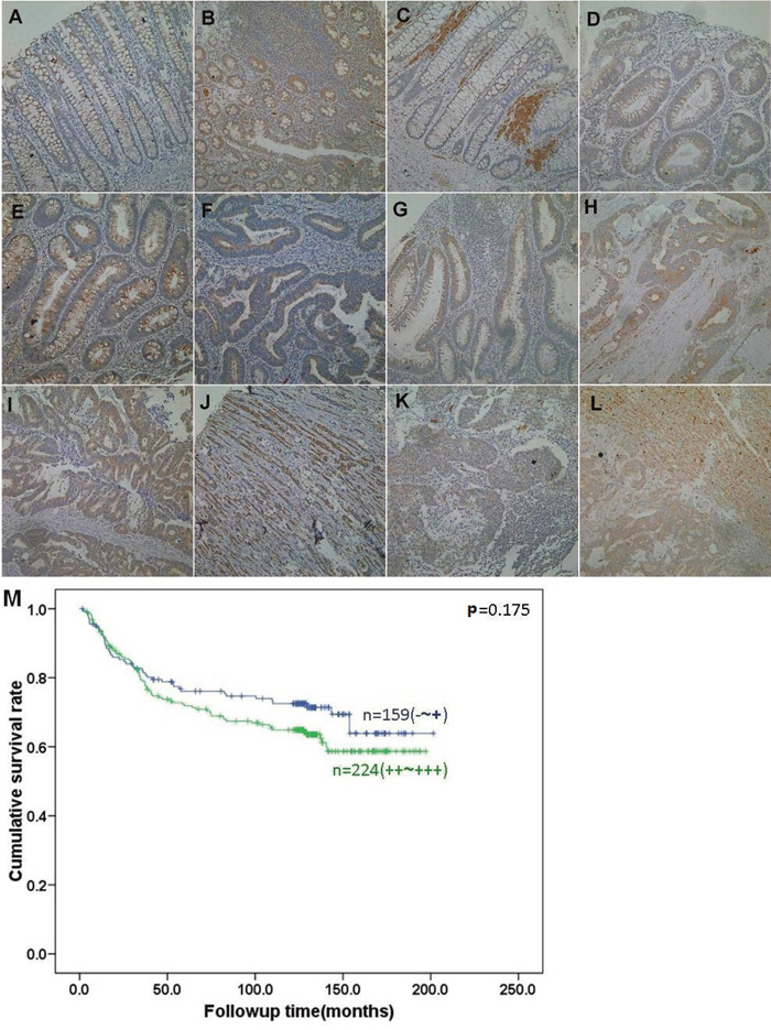 BTG3 expression and its prognostic significance in colorectal cancer.