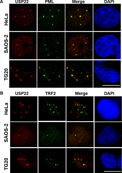 USP22 is a component of PML bodies and co-localizes with telomeric proteins in ALT cells.