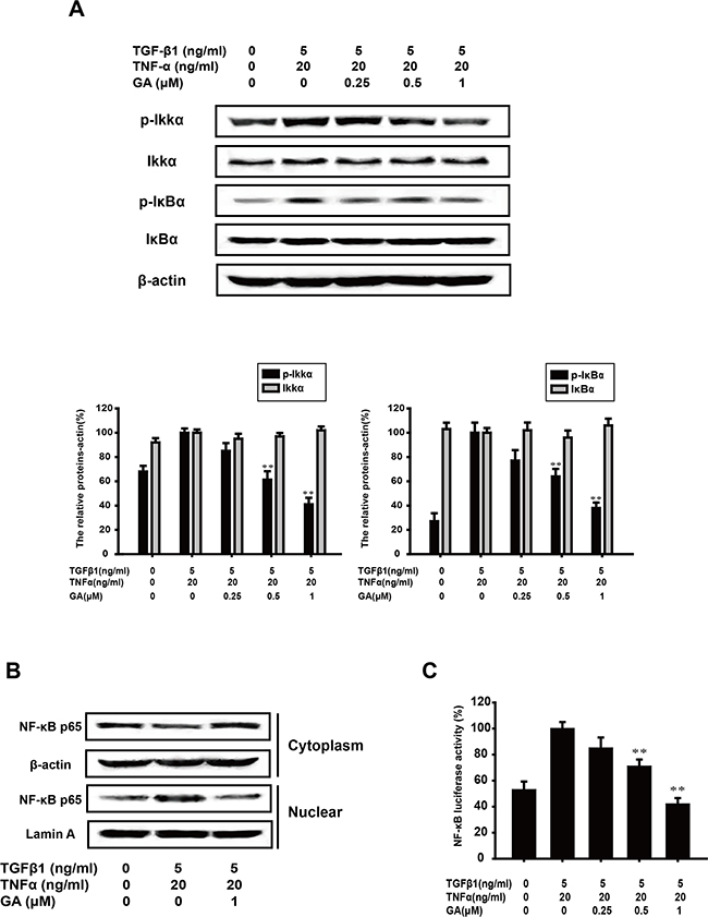GA inhibits TGFβ1+TNFα-activated NF-κB signaling in A549 cells.