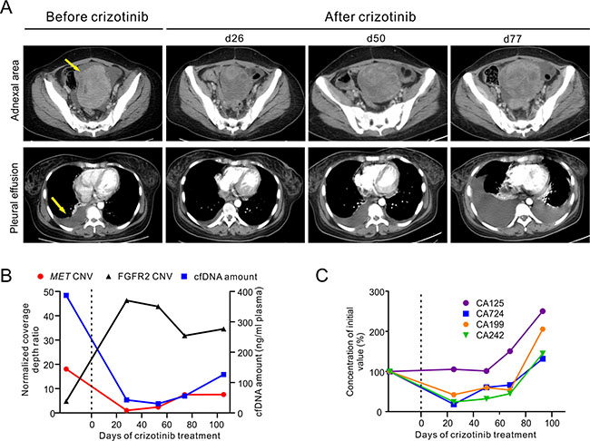 Clinical and genetic monitoring of the gastric cancer patient before and during crizotinib treatment.