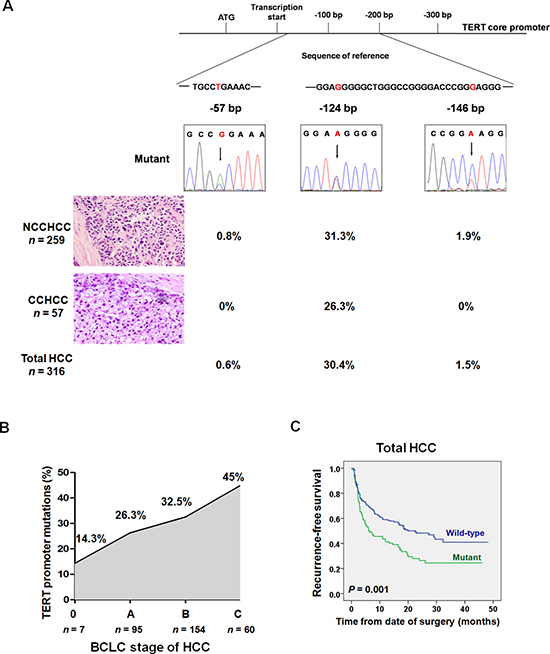 TERT promoter mutations in different subtypes of HCC and the prognostic value of mutations in predicting recurrence after resection.