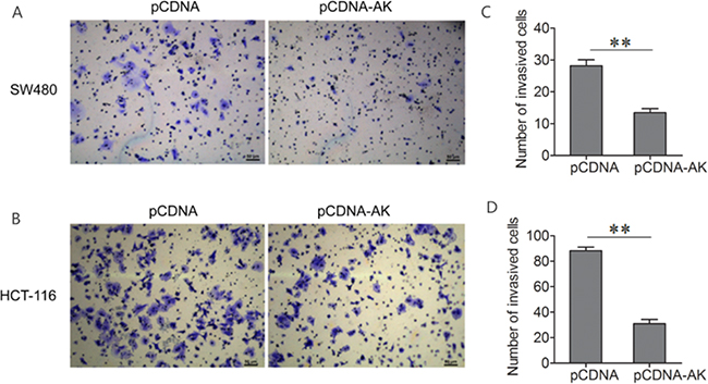 Up-regulation of lncRNA-BCAT1 inhibits the invasion of CRC cells.