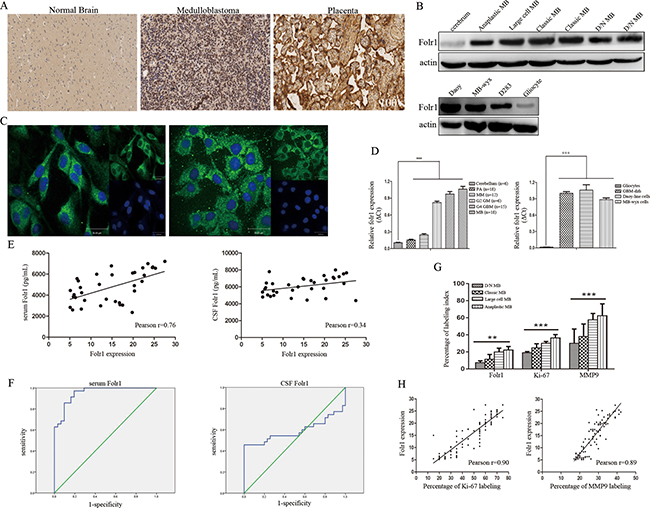 Folr1 expression in MB tissues and cells.