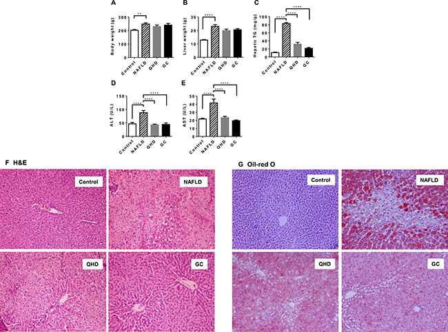 Beneficial effects of QHD and GC therapies on the fatty liver in the high-fat diet fed rat model.