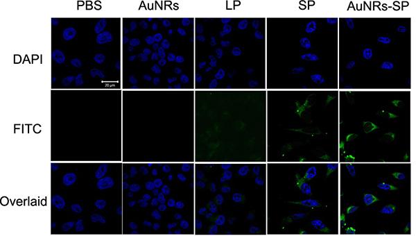 Fluorescent images of human BMSCs.