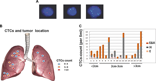 EMT-CTCs prior to operation in cohort A with early stage lung adenocarcinoma.