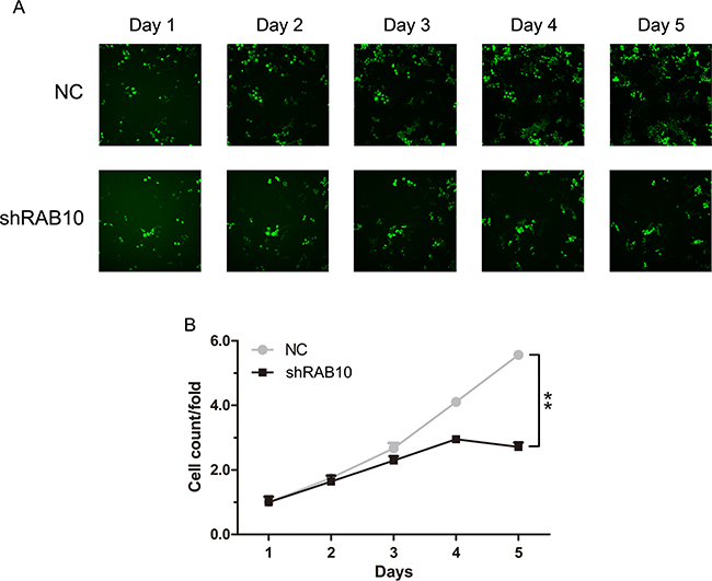RAB10 knockdown suppressed cell proliferation in SMMC-7721 cells.