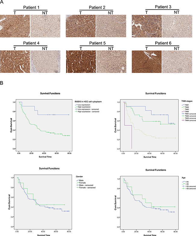 Expression of RAB10 was elevated in tissues of HCC patients.