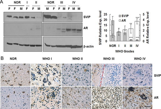 AR expression is increased, but SVIP expression is reduced in glioma samples compared with normal brain tissues.