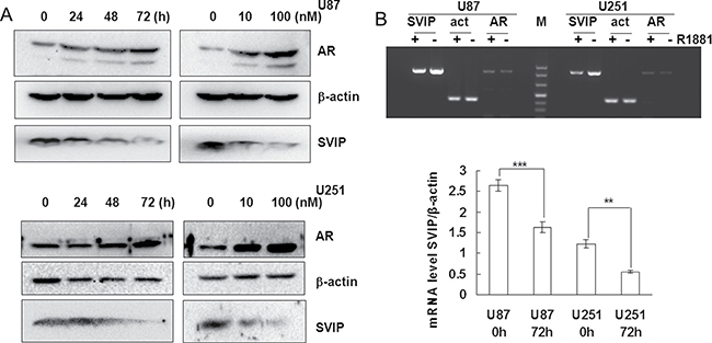 AR inhibits SVIP expression on transcriptional level in glioma cell lines.