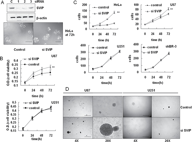 Depletion of SVIP by siRNA leads to increased proliferation of U87 but not U251 cells.