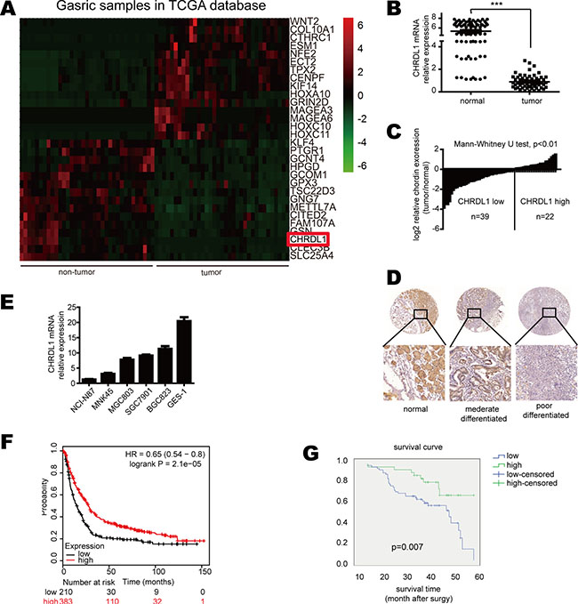 CHRDL1 expression was down-regulated in gastric cancer and correlated with poor survival.