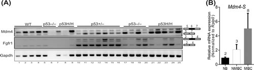 Aberrant gene splicing is a consequence of tumorigenesis.