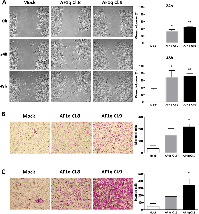 AF1q stable overexpression promotes cell motility and migration in A2780 ovarian cancer cells.