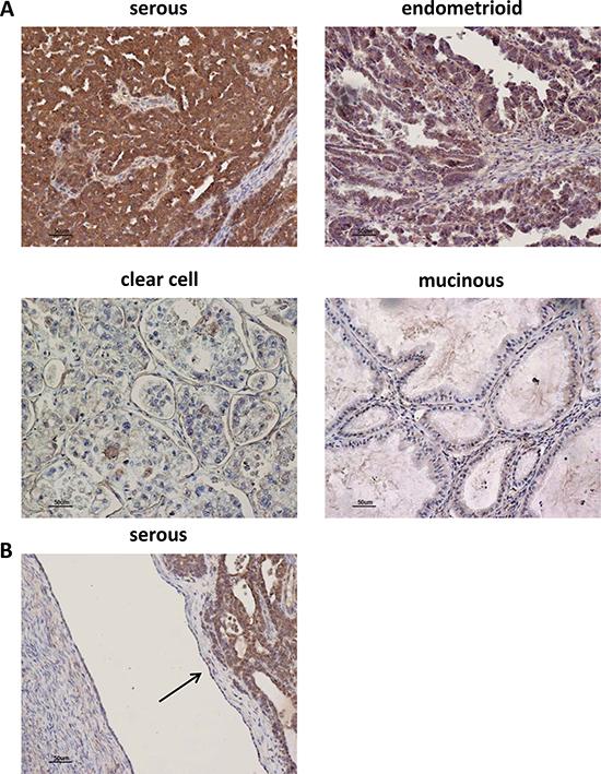 AF1q immunostaining in human ovarian tumor tissues.