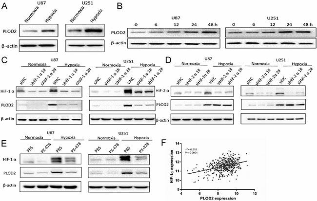 Hypoxia induces PLOD2 expression through HIF-1α in U87 and U251 glioma cells.