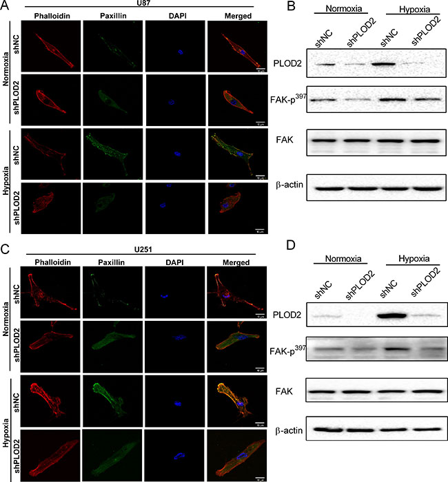 PLOD2 mediates actin cytoskeleton remodeling through FAK.