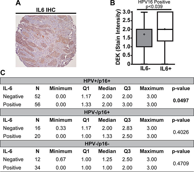 High DEK expression was associated with IL6 expression in HPV16+ tumors.