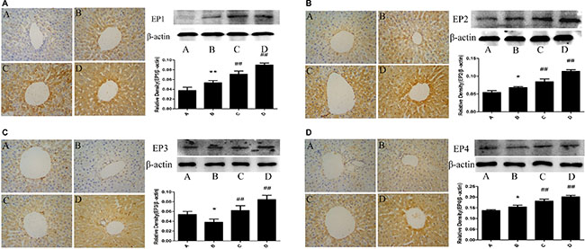 Effect of meloxicam on changes of liver EP1,2,3,4 protein expression in chronic Al-overload rats.