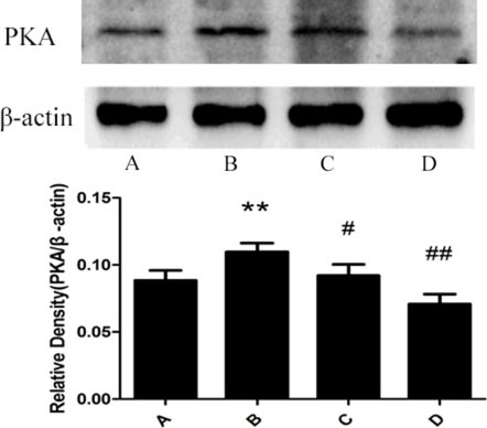 Effect of meloxicam on changes of liver PKA protein expression in chronic Al-overload rats.
