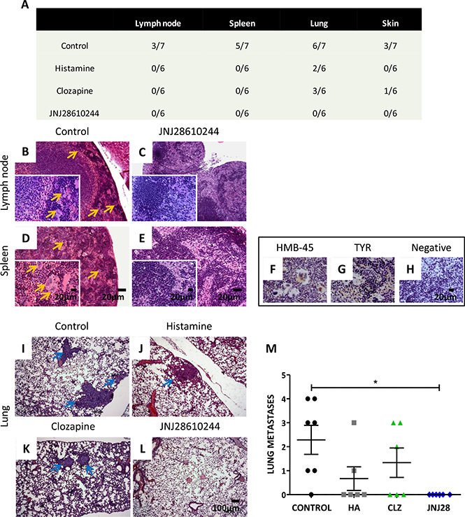 Analysis of the metastatic potential of 1205Lu xenografted tumor in mice.