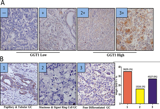 GGT expression is different among histological subtypes of gastric cancer (A) The scoring criteria of cytoplasmic GGT in gastric cancer, 0 refers negative, + refers weak positive, 2+ refers positive, 3+ refers strong positive.