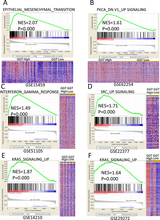 Enriched gene signatures of high GGT group are associated with proliferation and metastasis of gastric cancer.