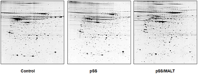 2-DGE of the proteins in salivary gland tissues from non-SS controls and patients with pSS or pSS/MALT lymphoma.