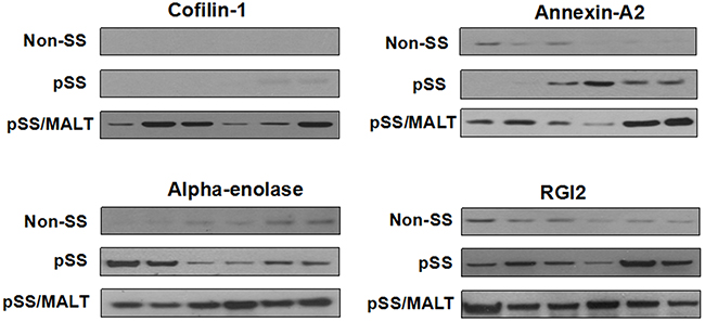 Western blot analysis of cofilin-1, alpha-enolase, annexin A2 and RGI2 in salivary gland tissues from non-SS controls (n=6) to patients with pSS (n=6) or pSS/MALT lymphoma (n=6).