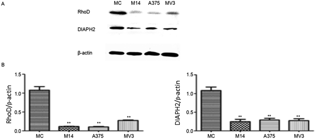 Expression of key proteins regulating cytoskeleton in melanoma cells and MC.