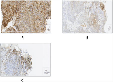 Different patterns of PD-L1 expression in ESCC specimens.
