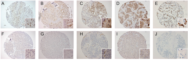 Representative examples of immunohistochemical staining pattern for HIF-1α, CAIX, Glut-1, VEGF and MVD.