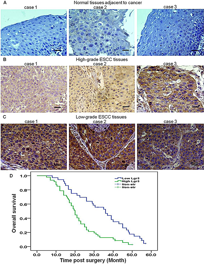 Lgr5 is overexpressed in ESCC, and expression is negatively correlated with prognosis.