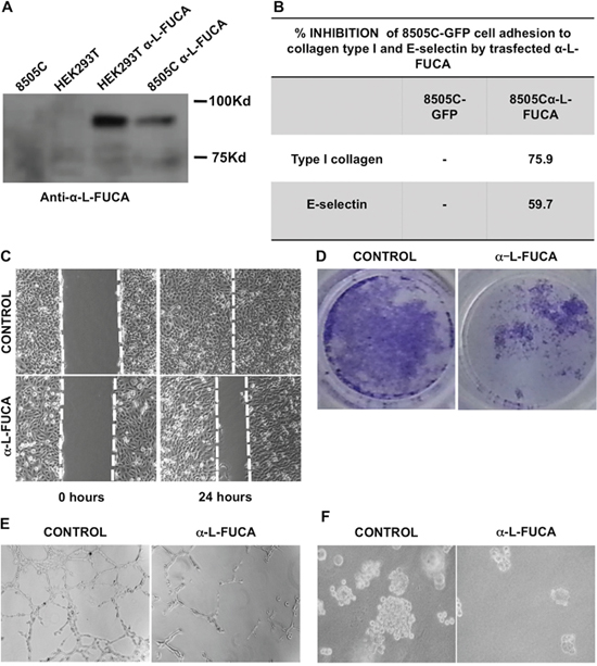 A. Western blot analysis of protein extracts obtained from 8505C (lane 1), HEK293T cells (lane 2), HEK293T cells transfected with the α-L-FUCA-1 plasmid (lane 3), 8505C cells transfected with the α-L-FUCA-1 plasmid (lane 4).