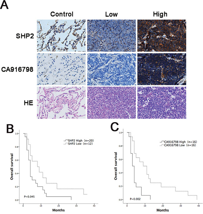 Analysis of survival curves in cancer patients with different expression levels of Shp2 and CA916798 after chemotherapy.