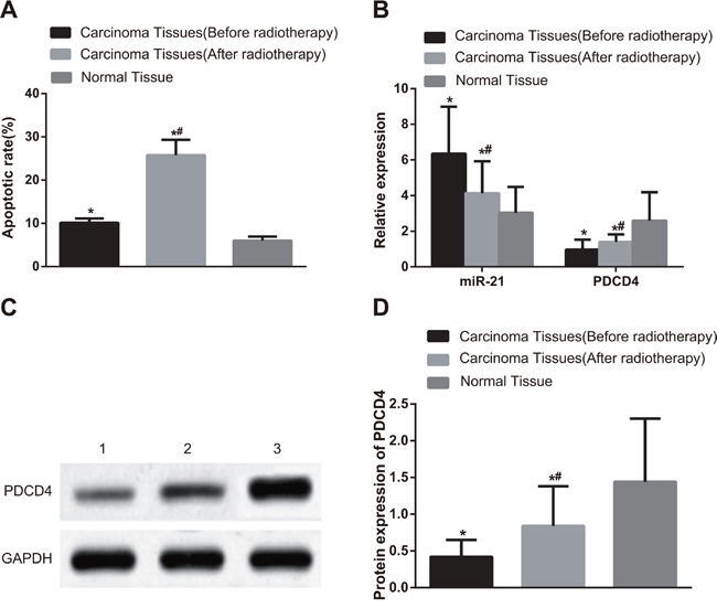 Comparisons of cell apoptosis and the miR-21 expression, PDCD4 mRNA and protein expressions in NSCLC and adjacent normal tissues before and after radiotherapy.