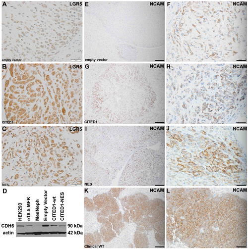Validation of LGR5 upregulation and CDH6 repression in experimental WT model.