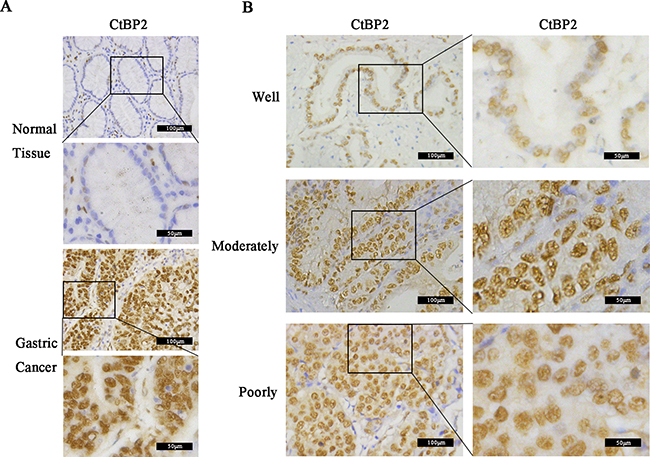 Immunohistochemical (IHC) analysis of CtBP2 expression in 352 gastric cancer (GC) and matched normal tissues.