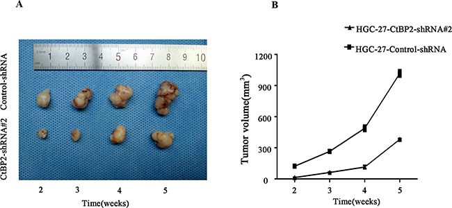 Knockdown of CtBP2 suppresses GC tumourigenesis in vivo.