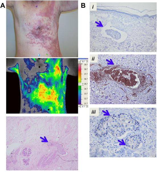 XIAP and NFκB expression in tumor emboli in IBC patient samples.