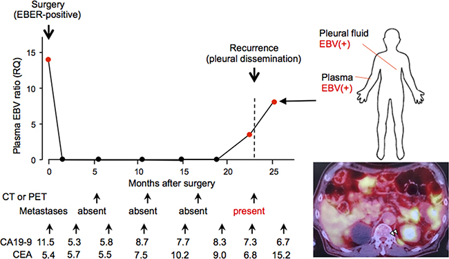 Longitudinal analysis of the clinical history of a case whose plasma Epstein-Barr virus (EBV) ratio was monitored repeatedly before and after surgery.