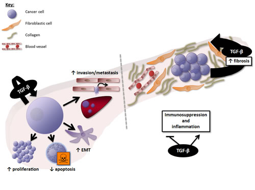 Overview of the effects of TGF-β signalling in PDAC.