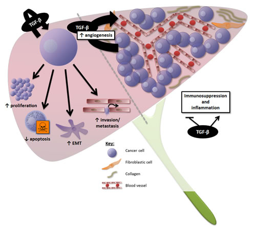 Overview of the effects of TGF-β signalling in HCC.
