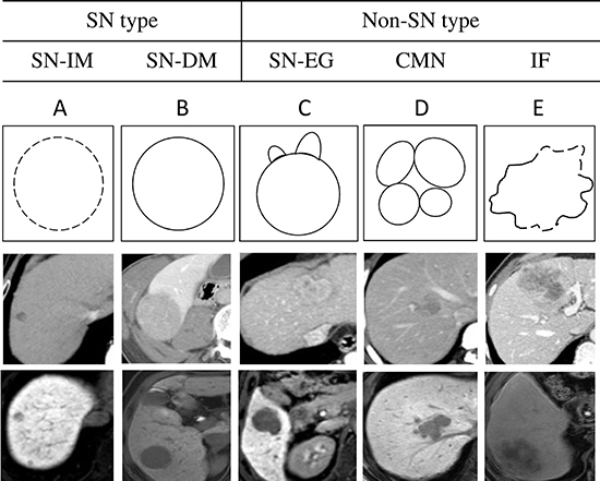 Summaries of the five gross classification of hepatocellular carcinoma.