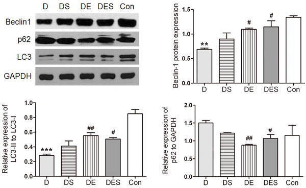Spermidine and exercise resulted in the activation of autophagy in skeletal muscle and the recovered autophagy during the D-gal-induced atrophy process of skeletal muscle due to up-regulated Beclin-1 and down-regulated p62 as well as increased LC3-II/LC3-I ratio.