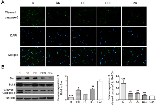Spermidine combined with exercise could reduce apoptosis in D-gal-induced atrophy of gastrocnemius muscle.