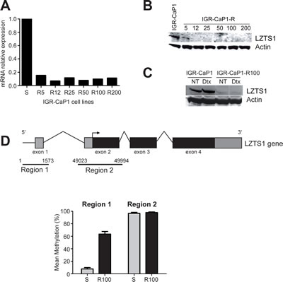 Inhibition of LZTS1 gene expression in Docetaxel-resistant IGR-CaP1-R cells.