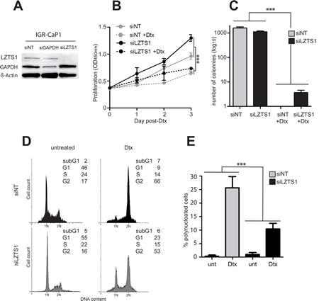 LZTS1 down-regulation enhances survival of IGR-CaP1 cells.